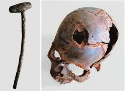 Боевое ранение: бронзовы наконечник стрелы в позвонке. Клингс, Южная Тюрингия (по: Osgord и. а. 2000)